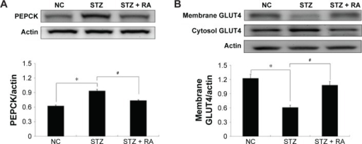 Effect of RA on the PEPCK protein levels in the liver and GLUT4 protein levels in the skeletal muscle of STZ-induced diabetic rats.Notes: Sample extracts were prepared from the NC, STZ, and STZ + RA groups. STZ rats were treated with RA (200 mg/kg) via intraperitoneal injection for 7 days. (A) The PEPCK expression level in the liver. (B) Immunoblots of GLUT4 levels in the cytosol and membrane fractions of skeletal muscle samples. GLUT4 protein levels in the rats fed control chow were used as the control for the relevant quantifications. Each bar represents the mean ± SEM (n=6). *P<0.05 vs NC and #P<0.05 vs STZ.Abbreviations: RA, rosmarinic acid; STZ, streptozocin; NC, normal control; SEM, standard error of the mean.