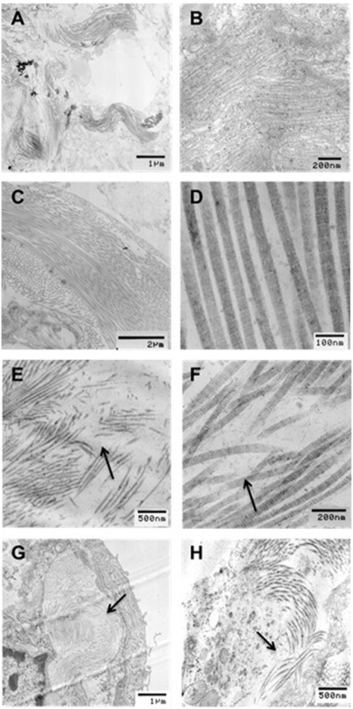 Transmission electron microscopy (TEM) images of collagen structure for (A,B) undigested, no stretch, (C,D) undigested, 40% strain, (E,F) digested, no stretch, and (G,H) digested, 40% strain. All images were taken in the unstretched state. Arrows indicate regions of collagen degradation. Bar denote magnification.