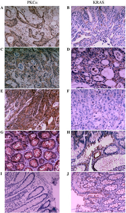 Representative immunohistochemistry images of PKCα (left column) and KRAS (right column) staining in adenocarcinoma, colon adenoma and normal colon mucosa. (A and B) Minimally-differentiated adenocarcinoma; (C and D) moderately-differentiated adenocarcinoma; (E and F) well-differentiated adenocarcinoma; (G and H) colon adenoma; (I and J) normal colon mucosa. PKCα, protein kinase Cα; KRAS, Kirsten rat sarcoma viral oncogene homolog.
