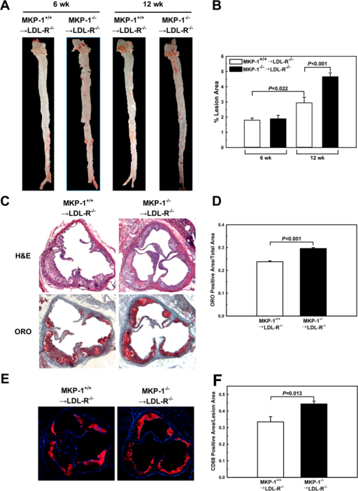 MKP-1 deficiency in macrophages promotes atherosclerosis.Bone marrow transplantation was performed in LDL-R−/− mice using wildtype and MKP-1−/− mice as bone marrow donors. Mice were fed a high-fat diet for 6 and 12 wk. Hearts and aortas of bone marrow recipients were removed, and the size of atherosclerotic lesions was determined by en face analysis (A+B) and Oil Red O–stained sections from the aortic roots (C+D). Experiments were performed using 5–10 mice per experimental group. Macrophage contents in the atherosclerotic aortic roots was assessed by analysis of CD68-stained sections from the aortic root (E+F). Experiments were performed using 6 mice per experimental group. Results shown are mean ± SE.