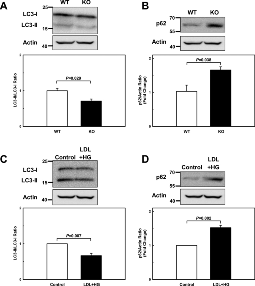 Both MKP-1-deficient and metabolically primed macrophages exhibit defective autophagy.(A+B) Autophagic activity was assessed by Western blot analysis as the ratio of LC3-II to LC3-I and p62/SQSTM1 levels in peritoneal macrophages isolated wildtype (WT) and from MKP-1−/− (KO) mice and (C+D) in unprimed (Control) and metabolically primed (LDL + HG) peritoneal macrophages. Results shown are mean ± SE of 3 independent experiments.
