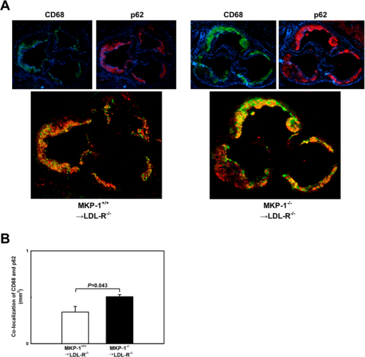 Loss of MKP-1 activity impairs macrophage autophagy in atherosclerotic lesions.(A+B) Autophagy in the atherosclerotic aortic roots of mice that received either wildtype or MKP-1−/− bone marrow and were fed a high-fat diet for 12 weeks was assessed by immunofluorescence. The autophagy marker p62/SQSTM1 (red) was concurrently imaged with CD68 (green). Experiments were performed using 5 mice per experimental group. Results shown are mean ± SE.