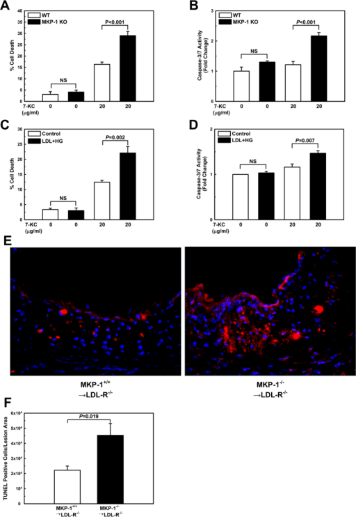 Both MKP-1-deficient and metabolically primed macrophages are sensitized to oxysterol-induced apoptosis.Apoptosis was assessed in peritoneal macrophages treated with vehicle or 7-KC for 24 h. Cell death was measured by trypan blue dye exclusion and caspase 3/7 activation in peritoneal macrophages isolated from wildtype (WT) and MKP-1−/− (KO) mice (A+B), and in unprimed (Control) and metabolically primed (LDL + HG) peritoneal macrophages from C57/BL6 mice (C+D). Results are shown as mean ± SE (n = 3–4). Cell death in the atherosclerotic aortic roots of mice that received either wildtype or MKP-1−/− bone marrow and were fed a high-fat diet for 12 wk was assessed by TUNEL-positive cells relative to the atherosclerotic lesion area (E+F). Experiments were performed using 5–8 mice per experimental group (MKP-1+/+ → LDL-R−/−: n = 5; MKP-1−/− → LDL-R−/−: n = 8). Results are shown as mean ± SE.