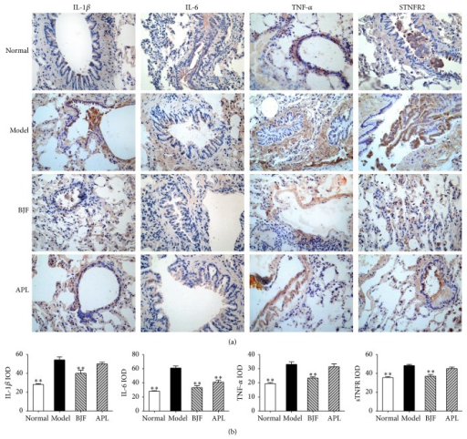 Effect of BJF on IL-1β, IL-6 TNF-α, and sTNFR2 expression in COPD rat lung tissue. IL-1β, IL-6, TNF-α, and sTNFR2 in lung tissues were detected with immunohistochemistry (magnification, ×100) on week 32 (a). Quantitative analysis for IL-6, IL-1β, TNF-α, and sTNFR2 expression was performed (b). Results were given as means ± SEM and ∗∗p < 0.01 versus model.