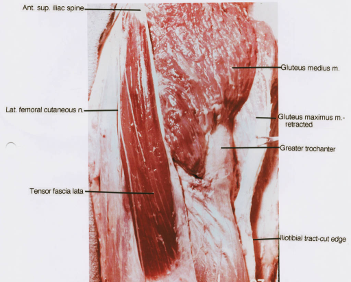 anterior superior iliac spine; lateral femoral cutaneous nerve; tensor fascia lata muscle; gluteus medius muscle; gluteus maximus muscle; greater trochanter; iliotibial tract