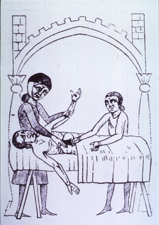 <p>An operation on the liver.  From a manuscript, A.D. 1385.</p>
