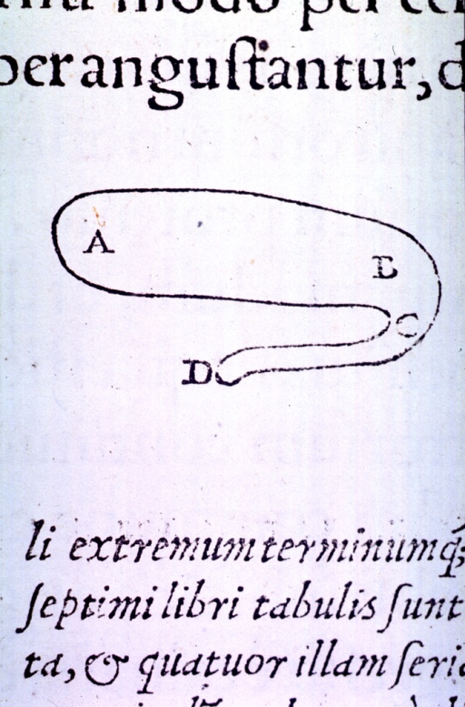<p>Vignette of the cerebral ventrical.</p>