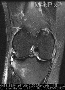 FSE T2-weighted with fat saturation coronal MR image shows the increased signal intensity within the medial collateral ligament consistent with a partial thickness tear. The Segond fracture is seen as a lateral capsule avulsion with a focal osseous deficit at the lateral proximal tibia. Associated with this is high-signal-intensity edema/contusion of the lateral tibial plateau and lateral femoral condyle.