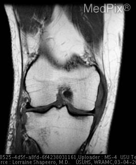 T1-weighted coronal MR image shows indistinctness of the medial collateral ligament at the joint line and low-signal- intensity edema of the lateral tibial plateau and defect of the Segond fracture.