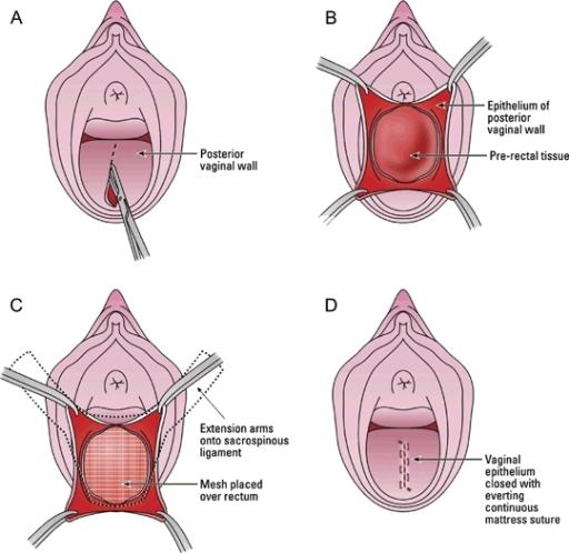 seks-posle-operatsii-opushenie-matki