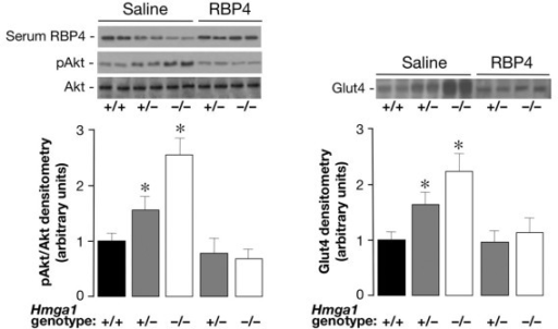 Effects of recombinant RBP4 administration on Akt phosphorylation and Glut4 protein expression in Hmga1-deficient mice. Basal (saline) levels of pAkt (left) and Glut4 (right) were increased in skeletal muscle of saline-injected Hmga1-deficient mice compared with controls, and were reduced following RBP4-injection (n = 6 per genotype). Densitometric quantifications of three independent experiments from 3 animals per genotype are shown, together with representative Western blots of pAkt, Glut4, and serum RBP4 of saline and RBP4-injected mice. *P < 0.05 versus Hmga1+/+.