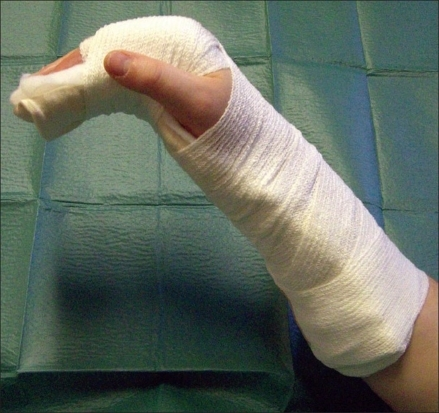 Plaster Secured To Arm With Bandage And Tape Open I