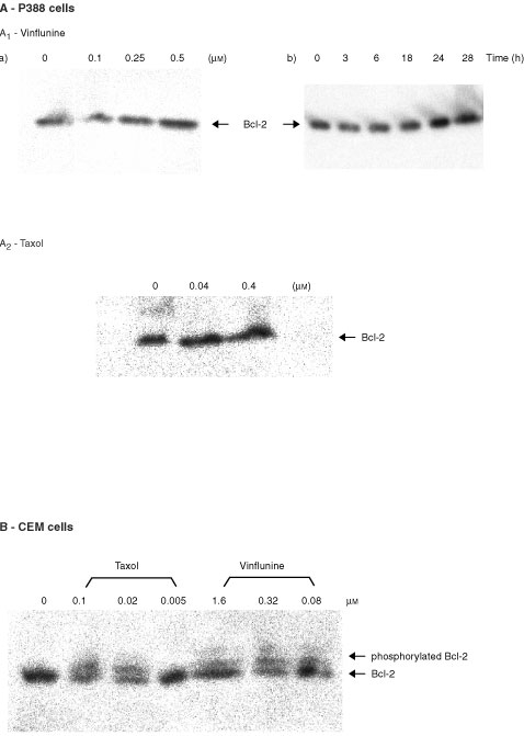 Effects of vinflunine on Bcl-2 phosphorylation. (A) Neither vinflunine, nor taxol induced Bcl-2 phosphorylation in P388 leukaemia cells. Western blot analyses of P388 cells after a 24-h exposure to either 0.1–0.5 μM vinflunine (A1) or 0.04–0.4 μM taxol (A2), or to 0.3 μM vinflunine for 3–24 h (A2). (B) Vinflunine and taxol induced Bcl-2 phosphorylation in human CEM leukaemia cells. Western blot analyses of CEM cells after a 24-h exposure to either 0.08–1.6 μM vinflunine or 0.005–0.1 μM taxol.