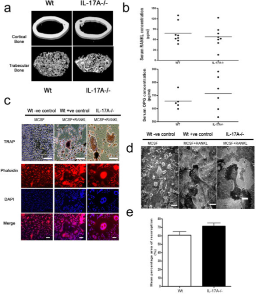 IL17A-/- mice have normal bone mineral densities and osteoclast formation. (a) High-resolution micro-computer tomography analysis of 8-week-old male mouse femur midshaft and distal trabecular bone from IL-17A and wild-type (Wt) mice. (b) Serum receptor activator of NF-κB ligand (RANKL)/osteoprotegerin (OPG) levels of 8-week-old to 10-week-old IL-17A-/- mice and control mice. (c) Upper: bone marrow macrophages isolated from IL-17A-/- mice cultured for 6 days in the presence of macrophage colony-stimulating factor (MCSF)and RANKL form multinucleated tartrate-resistant acid phosphatase (TRAP)+ cells. Bars: 50 μm. Lower: Phalloidin, DAPI staining, and merged image of both stains of bone marrow macrophages isolated from IL-17A-/- mice and control mice cultured for 6 days in the presence of MCSF and RANKL showing F-actin ring formation. Bars: 25 μm. (d) Scanning electron photomicrographs of BMM cultures showing mature osteoclast resorbing activity (resorbed dentine has a rough, lighter colour appearance). Bars: 50 μm. Representative data of three experiments performed in triplicate. (e) Mean percentage area of dentine resorption of IL-17A and Wt mice.