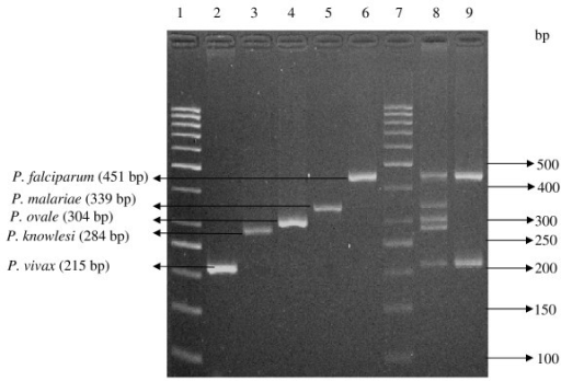Multiplex PCR results on Plasmodium spp. Lane 1, 7: 50 bp molecular weight ladder; Lane 2: Patient sample containing P. vivax; Lane 3: Patient sample containing P. knowlesi; Lane 4: Patient sample containing P. ovale; Lane 5: Patient sample containing P. malariae; Lane 6: Patient sample containing P. falciparum; lane 8: Positive controls with all the bands amplified from 5 types of Plasmodium constructs. Lane 9: Patient with mix infection, sample containing P. falciparum and P. vivax.