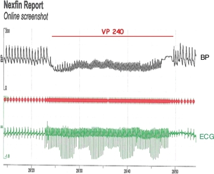 Patient's case. Blood pressure curve during ventricular pacing at 240 bpm for 30 s. Automatic calibration of the system for a period of 2.5 s toward the end of the pacing period.