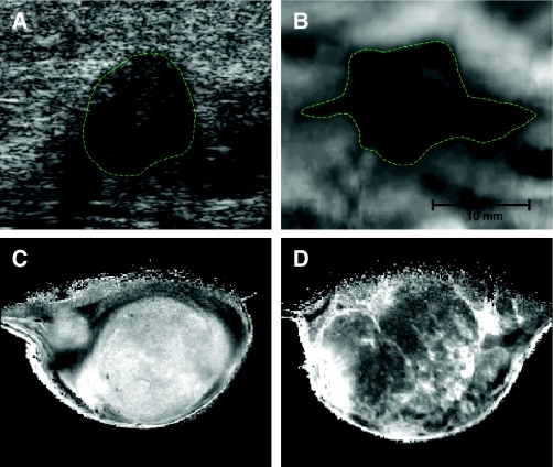 Imaging the biomechanical properties of the matrix. Breast tumors are typically identified by changes in tissue mechanics, which can be detected physically, through palpitation or via imaging modalities that exploit tumor-associated changes. (A,B) Images of human breast tumor identified by ultrasound echogram (A) and mammary elastography imaging (B). The dashed lines roughly outline the imaged lesion boundary. The elastogram seems to shows a larger apparent lesion width but a similar height, relative to the echogram. This seems to be due to lateral protrusions, which are consistent with a desmoplastic response associated with local invasion that takes advantage of existing ductal and vascular anatomy. (C,D) MRI images of a 1-methyl-1-nitrosourea (MNU)-induced mammary carcinoma in rat. Here, not only do the changes in tumor ECM provide enhanced tissue contrast, but the intrinsic susceptibility of MRI exploits the paramagnetic properties of deoxyhemoglobin in erythrocytes. Deoxyhemoglobin therefore acts as an intrinsic, blood-oxygenation-level-dependent contrast agent, further highlighting the highly vascular nature of tumors. Ultrasound and elastography images were supplied courtesy of Jeff Bamber (The Institute of Cancer Research, UK). MRI images were supplied courtesy of Simon P. Robinson (The Institute of Cancer Research, UK).