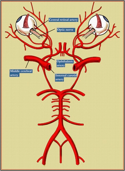 Diagram showing the Circle of Willis, middle cerebral a | Open-i