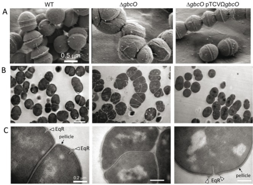 Electron microscopy imaging of NEM316 WT, ΔgbcO mutant, and complemented strains.Bacteria were harvested in mid-log phase (OD600 nm = 0.5), fixed, and prepared as described in Supporting Materials and Methods (see Text S1) (A) Representative views of scanning electron microcopy analysis illustrating the morphological alterations (size, form, and cell division abnormalities) due to gbcO inactivation. (B, C) Transmission electron microscopy views of uranyl acetate stained thin cryosections at two magnifications (see scale bars). The presence of the pellicle (electron dense outer layer) at the surface of WT and complemented strains observed at the higher magnification is highlighted with black arrows. An open triangle depicts the equatorial ring (EqR), a zone of active peptidoglycan synthesis seen in almost all WT and complemented cells but absent in the ΔgbcO mutant cells.