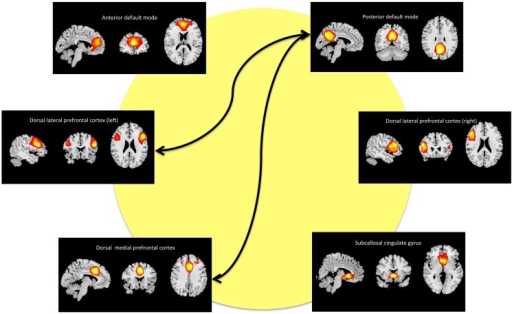 Maps of the networks of interest include the anterior default mode network (a_DM), subcallosal cingulate gyrus (SCC), dorsal medial prefrontal cortex (DMPFC), posterior default mode network (p_DM), and dorsal lateral prefrontal cortex (r_DLPFC, l_DPLFC). Each component map has a lower threshold of t = 10. The images are shown in radiological convention. The arrows represent the significant (FDR-corrected), longitudinal differences in FNC associated with ECT response.