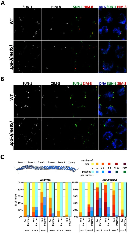 Localization of PC proteins to the NE in spd-3(me85) mutants.(A–B) Projections of transition zone nuclei from wild type and spd-3(me85) mutant worms expressing SUN-1::GFP and stained with anti-HIM-8 and anti-ZIM-3 antibodies and counterstained with DAPI. HIM-8 and ZIM-3 signals are associated with SUN-1 aggregates in both wild type and spd-3(me85) mutant, which display elevated numbers of SUN-1 aggregates. Videos S1 and S2 show three-dimensional reconstructions of nuclei from panel A. Scale bar = 5 µm in both panels. (C) Quantification of SUN-1 aggregates. Y axis indicates the percentage of nuclei with a given number of SUN-1 foci (aggregates smaller that 1.1 µm in diameter) or patches (aggregates larger than 1.1 µm in diameter), the X axis indicates regions along the germ line as indicated in the diagram. Note the big increase in SUN-1 foci in spd-3(me85) mutant and their persistence until mid/late pachytene.