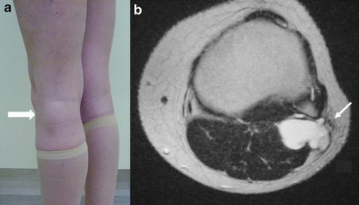 Extraneural ganglion. Photograph of the left knee (a) shows a focal swelling on the posterolateral corner of the knee (thick arrow). Axial T2-WI (b) shows a cyst posterior to the proximal tibiofibular joint, displacing the common peroneal nerve laterally (arrow)
