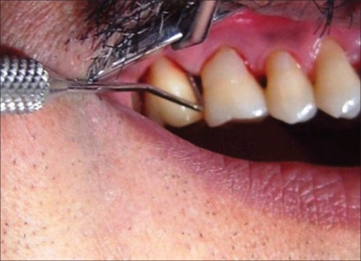 Measurement of clinical attachment level in a healthy patient with chronic Periodontitis