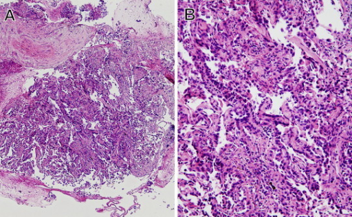 Photomicrographs of the Hematoxylin & Eosin staining of a transbronchial biopsy specimen from a pure ground glass opacity show adenocarcinoma with lepidic growth. A (×100); B (×400).