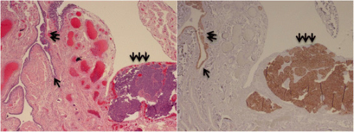 IMP3 overexpression in tubal serous tubal intraepithelial carcinoma and invasive serous carcinoma. IMP3 signatures (single arrow, right) shows morphologically bland cells (single arrow, left), which exists in anatomic continuity with tubal serous intraepithelial carcinoma (double arrows). The IMP3 is also diffusely positive in the invasive component of the serous carcinoma (triple arrows), which is located adjacent to the tubal fimbria in a case with PSC.