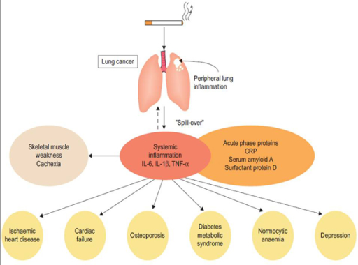 "Lung injury caused by inhaled irritants like tobacco smoking generates peripheral lung inflammation that may cause ""spill over"" of different types of cytokines into the systemic circulation. According to this hypothesis, systemic inflammation causes skeletal muscle dysfunction and muscle wasting, but it may also cause and worsen co-morbidities (reproduced from [30]with permission)"