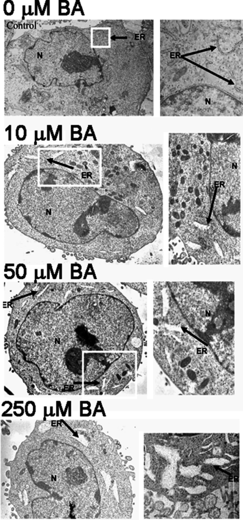 BA induces ER vacuolization and expansion in DU-145 cells. TEM images of DU-145 cells treated for 24 h with 0, 10, 50, and 250 µM BA (n = 3). Cells exhibited a dose-dependent swelling and vacuolization of the ER, (N nucleus, ER endoplasmic reticulum). White boxes indicate magnified area shown on the right