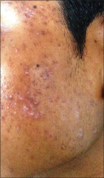 Erythematous papules with pustules and hyperpigmentation over the face