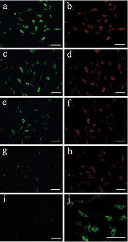Immunofluorescent staining of the effect of DHEA with/without IL-1beta on fibromodulin (FM) expression in FLS cells of OA TMJs. a,c,e,g) Immunofluorescent staining of FM expression. b,d,f,h) Immunofluorescent staining of internal control GAPDH expression. a,b) DHEA (10 μM) plus IL-1 β (1 ng/mL). c,d):DHEA (10 μM) alone. e, f) IL-1 β (1 ng/mL) alone. g,h) None. i) Negative control (omission of first antibody) for immunofluorescent staining of FM in FLS cells of OA TMJs. Scale bars: a-i) 100 μm; j) higher magnification of panel a.