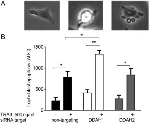 The effect of inhibiting the expression of DDAH1 and 2 on TRAIL-induced apoptosis. Time lapse apoptosis analysis was carried out on cells transfected with either non-targeting siRNA or siRNA targeted to DDAH1 or 2, following addition of 500 ng/ml TRAIL for 24 h. Twenty cells were chosen at random for each condition and induction of apoptosis was followed by characteristic morphological changes (A). The image on the left shows a cell prior to the onset of apoptosis, the middle image shows the same cell rounding up and becoming bright before membrane blebs and blisters develop. The image on the right shows the formation of apoptotic bodies. Kinetics curves were obtained following the induction of apoptosis and the areas under the curve (AUC) were calculated (B). DDAH1 knockdown resulted in a significantly increased susceptibility to TRAIL-induced apoptosis. The data are shown as mean + SEM, from at least three independent experiments, *P < 0.05, **P < 0.01.