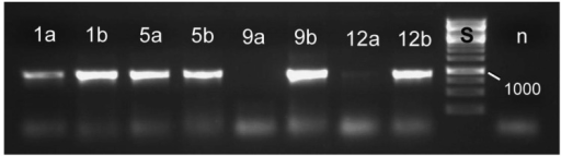 Molecular detection of symbiotic bacteria in larvae of Macroplea sp. from the tetracycline experiment, using specific PCR primers. Larvae of all four groups (tetracycline treated/control × free larvae/larvae from cocoon) contained symbiont DNA. Samples are: 1: free larva, tetracycline treated; 5: free larva, not treated; 9: larva from cocoon, tetracycline treated; 12: larva from cocoon, not treated; a: DNA extracted from blind sacs; b: DNA extracted from Malpighian tubules. The absence of symbionts from the blinds sacs of larvae after cocoon formation (9a, very faint band in 12a) was not always found, but is in compliance with the pattern of host tissue colonization [41]. n: negative control, distilled water as sample; S: size standard with the fragment size 1,000 bp given (cf. Figure 6).