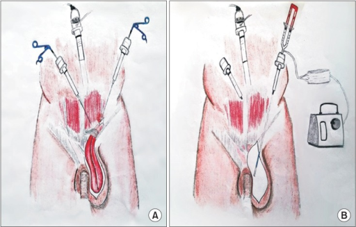 (A) A drawing showing the placement of the trocars in a patient of study group. (B) Application of fibrin sealant into the potential dead space by using a laparoscopic applicator through the trocar near the anterior superior iliac spine.