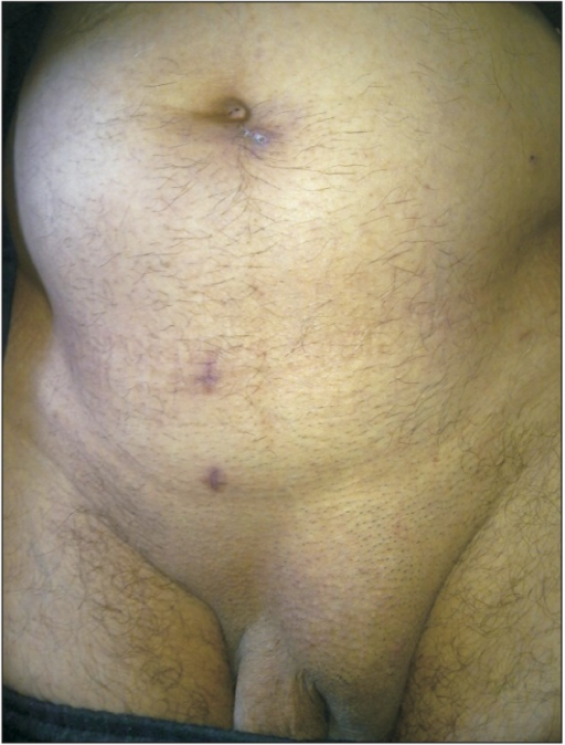 The image of a pseudorecurrence following laparoscopic total extraperitoneal for left scrotal hernia in a patient of control group.
