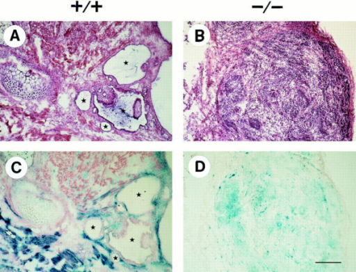 Histology of normal (+/+) and β1- (−/−) teratomas. Tumors derived from normal ES cells (β1 +/+) and from β1- ES  cells (β1 −/−) were stained with Hematoxylin/Eosin (A and B) and lacZ/eosin (C and D), respectively. Blue, lacZ-positive cells are ES  cell-derived whereas lacZ-negative cells are host-derived stromal cells that have migrated into the tumor tissue. Stars indicate lumina of  glandular structures. Bar, 100 μm.