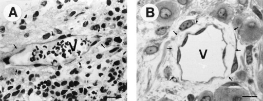 Semithin sections of a normal and a β1- teratoma stained with methylene blue and immunostained for vWF. Vessels (V) in  normal teratomas (A) have a smooth inner surface and are tightly embedded within the surrounding tissue (arrows). Vessels of β1-  teratomas (B) have an irregular surface and have lost contacts to the surrounding tissue (arrows). Bar, 20 μm.