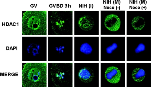Localization of HDAC1 during meiosis and mitosis. The GV-stage oocytes (GV), oocytes that were incubated for 3 h in IBMX-free medium (GVBD 3 h), and NIH 3T3 cells at interphase (NIH [I]), natural mitotic phase (NIH [M] noco [−]), or nocodazole-arrested mitotic phase (NIH [M] noco [+]) were immunostained with the antibody against HDAC1 (top) and costained with DAPI (middle). The bottom row shows the merged images from the top and middle rows.