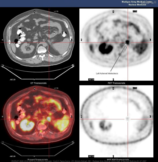 PET CT Transaxial images with red crosshairs highlighting the left adrenal metastatic focus.