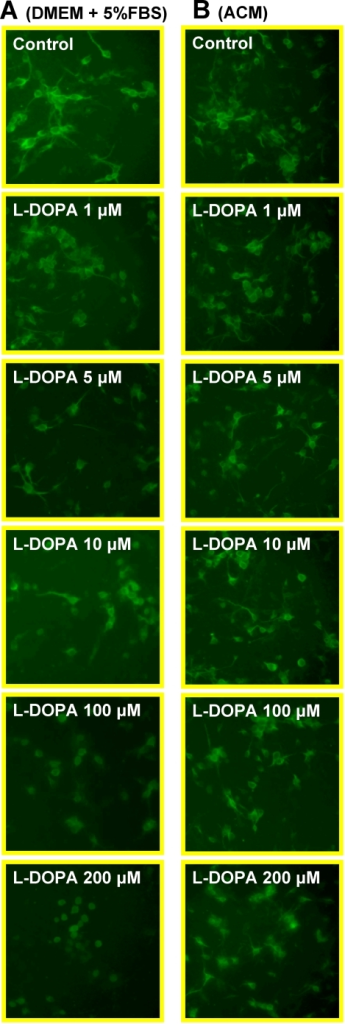 Immunocytochemistry of MAP2 in cortical neurons treated with or without L-DOPA.Neurons were exposed to L-DOPA (0, 1, 5, 10, 100, 200 µM) in DMEM+5%FBS (A) or astrocyte-conditioned medium (ACM) (B) for 16 hours and then immunostained for MAP-2 antibody as described in Materials and Methods.
