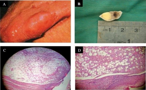 (A) Submucosal mass on the lateral border of the dorsal part of the tongue. (B) Gross picture of lipoma on the dorsal part of the tongue. (C) Lobulated mass with fibrosis capsule (H & E staining, original magnification X100). (D) Mature fat cells (H & E staining, original magnification X400)