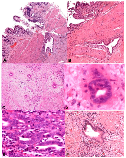 Figure 1 carcinoma involving the gallbladder a for Diffuse mural thickening