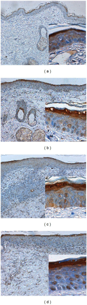 Immunohistochemical evidence of keratinization by loricrin at 14th day. Wounds treated with saline control (a), Pluronic F127 sol (b), saline plus vitamin C (c), and Pluronic F127 plus vitamin C (d) were demonstrated. Original magnifications taken at ×100 and ×200 as inset. Immunohistochemical staining by antiloricrin (epidermal differentiation marker) antibodies showed that loricrin was highly expressed in the upper granular cell layer, especially in the regenerated epidermis of Pluronic F127 plus vitamin C or saline plus vitamin C groups.