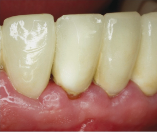 Grade 1 Chipping of a zirconia full-coverage crown (Tooth 41).