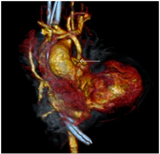 CT angiography with 3-dimensional reconstruction demonstrating a narrowing of the modified BT shunt at the point of anastamosis with the pulmonary artery.
