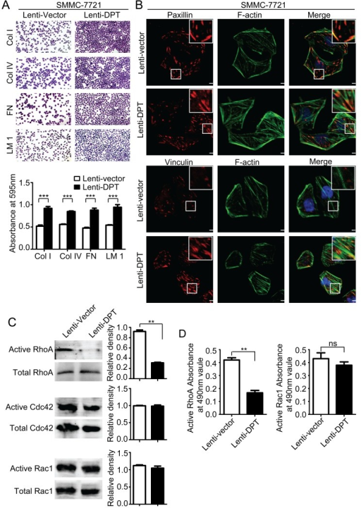 Overexpression of DPT enhances SMMC-7721 cell adhesion and affects focal adhesions and the activity of Rho GTPase(A) DPT overexpression increased the adhesion of SMMC-7721 cells to collagenI (ColI), collagenIV (ColIV), fibronectin (FN) and laminin1 (LM1). Adherent cells were stained with crystal violet and quantified by colorimetry (***P < 0.001). (B) The distribution of paxillin (upper panel) and vinculin (lower panel) was analyzed by immunofluorescence. Red fluorescence represents paxillin or vinculin staining. F-actin is shown by green fluorescence, and the cell nuclei were stained with DAPI (blue fluorescence). Scale bars, 10μm. (C) Analysis of the active and total RhoA, Cdc42 and Rac1 in Lenti-vector/SMMC-7721 and Lenti-DPT/SMMC-7721 cell lysates by pull-down assay. Values are means ± SEM (**P < 0.01). (D) The G-LISA results of active RhoA and Rac1. Values are means ± SEM (**P < 0.01), ns means no significance.