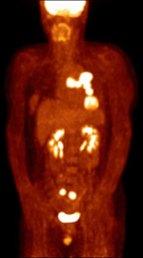 Bilateral ovarian metastases of lung cancer at the initial positron emission tomography-computed tomography scan showing hypermetabolic activity in both ovaries (maximum standardized uptake value: right 15.7, left 13.4).