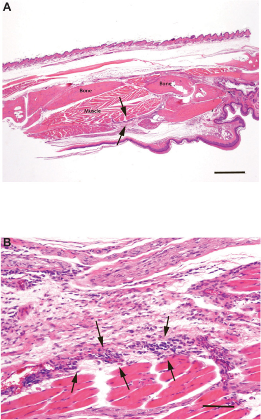 Photomicrographs of a sagittally sectioned foot of a representative Balb/c mouse sacrificed 25 days following inoculation with L. major and treatment with AMB-ND. Panel A) Note the mild inflammation in subcutaneous tissue (arrows). The footpad epidermis (bottom) is intact and bone and muscle have no lesions. H&E, bar=500µm. Panel B). The mild focal inflammatory cell infiltrate consists of mixed mononuclear cells (arrows). Normal skeletal muscle lies beneath these cells with normal loose connective above. H&E, bar=500 µm.